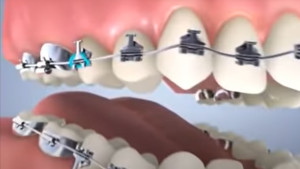Traitement multi-attaches